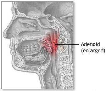 Adenoid Location